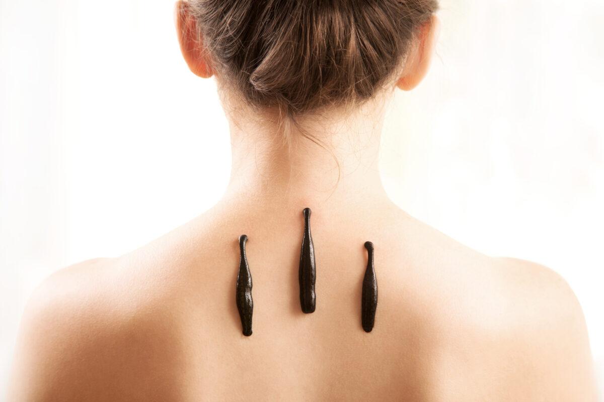 Zabieg hirudokosmetologii